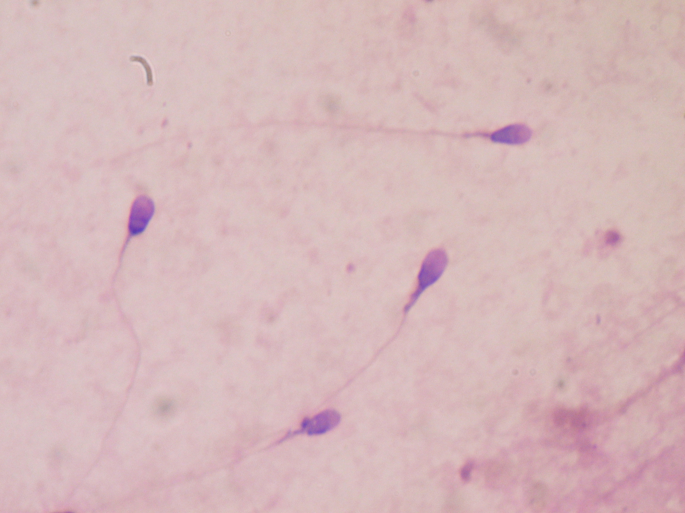 Stained human sperm in a laboratory. Image obtained from Wikimedia.org